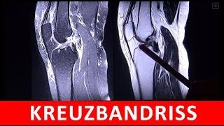 Kreuzbandriss - MRT MRI Darstellung - by Radiologie TV