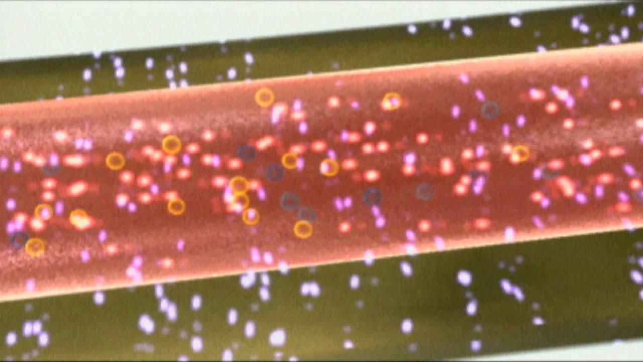 Wie Funktioniert Ein Laser : faszination laser teil 2 wie funktioniert ein laser youtube ~ Watch28wear.com Haus und Dekorationen