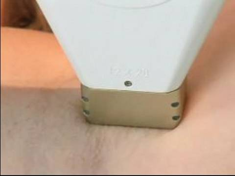 Laser Hair Removal : Laser Hair Removal Demonstration