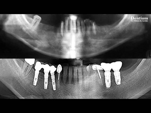 Implantium 10 years case