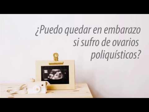 Tratamiento para quedar embarazada si tengo ovarios poliquisticos