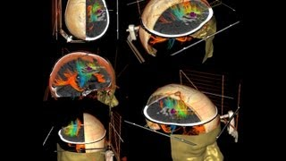 How a Mri scan is Done