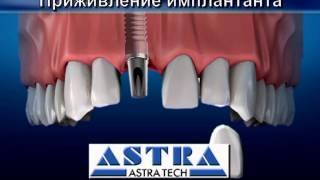 Почему и как надо ставить импланты зубов?(http://www.lazurmedical.ru Если у вас практически не осталось своих зубов, единственно правильное решение - установить..., 2013-03-01T09:47:05.000Z)