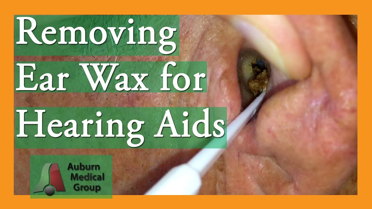 how to clean out ear wax with hydrogen peroxide