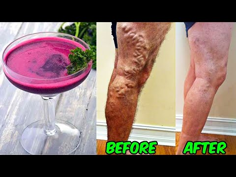 drink-this-juice-to-treat-and-reverse-varicose-veins