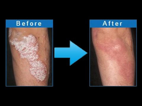 How To Treat Psoriasis  | Psoriasis Treatment | Psoriasis Revolution