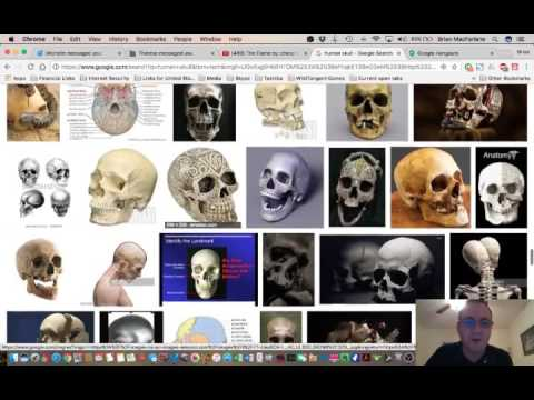 NEW HUGE Mandela Effect - Human Skull has a new V-shaped ridge above the nasal cavity (Vote #560)