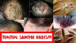 7 Cara Hilangkan Kutu Rambut dan Telurnya Secara Alami, Musnah dalam 1 Hari!.