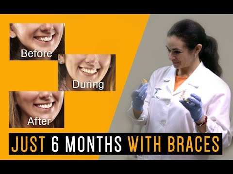 6 Month Smile Commercial | Envy Smile Dental Spa