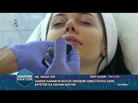 Ameliyatsız Burun Estetiği - Dr. Nihat Dik