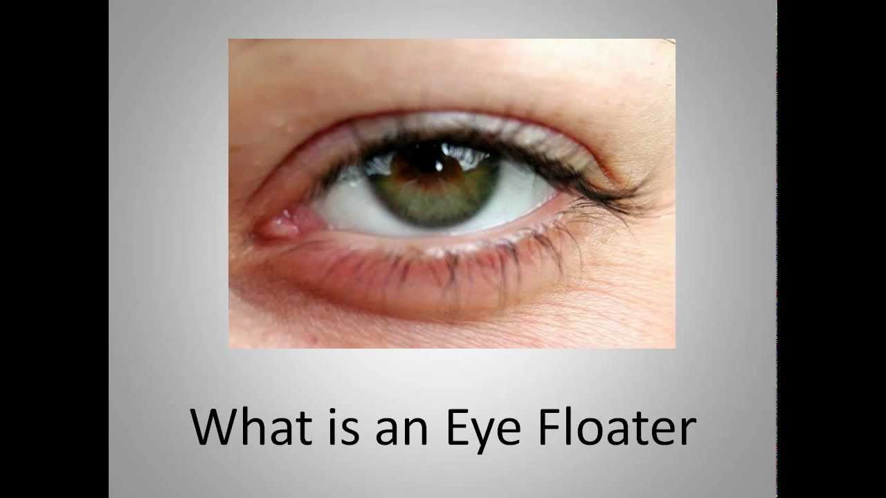 What is an Eye Floater - YouTube