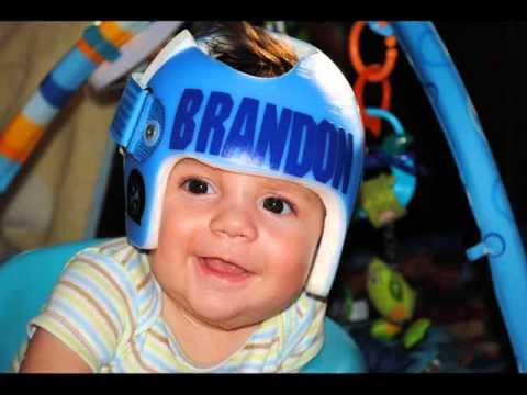 Infant Helmet Designs | Helmet Therapy For Infant Positional Skull Romance