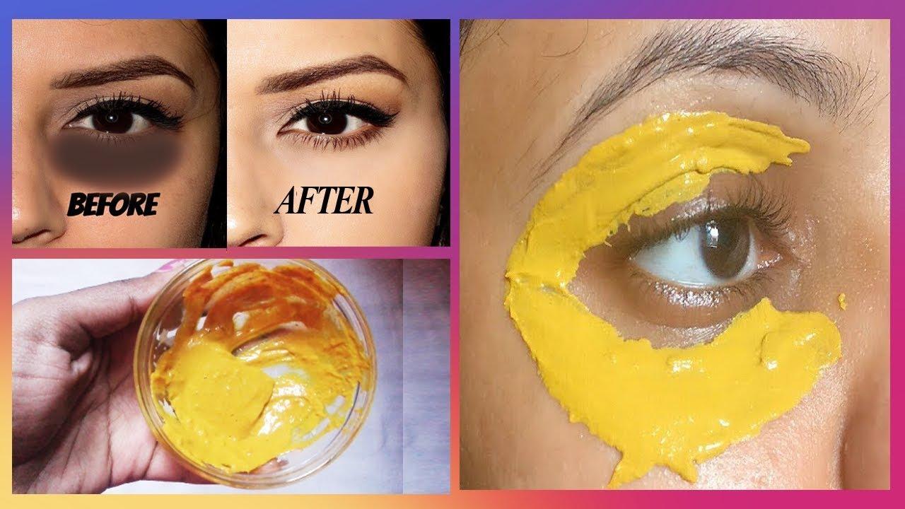 How To Lighten Dark Spots On Face Overnight