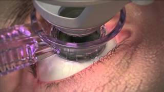 WaveLight LASIK Step 1: Applanation with the FS200 Laser