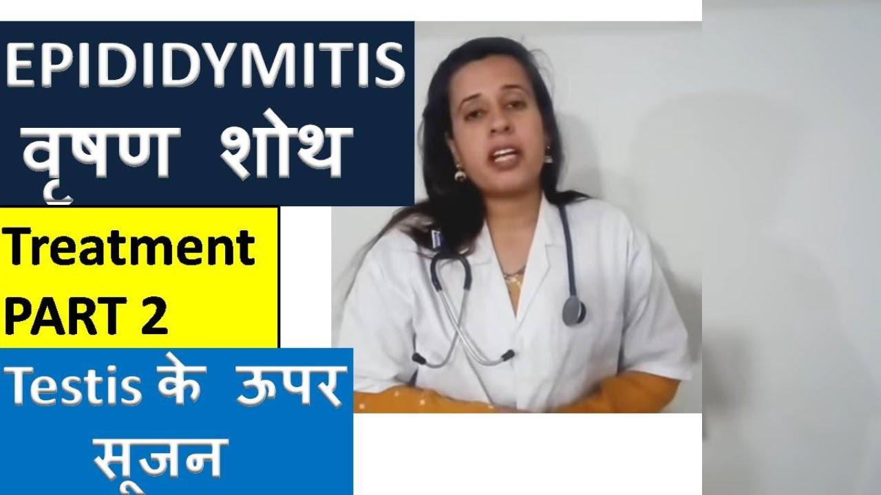 EPIDIDYMITIS TREATMENT | वृषण में सूजन का इलाज | Testis swelling and pain Treatment | #nehajoshi
