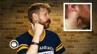 How To Deal With Beard Cowlicks