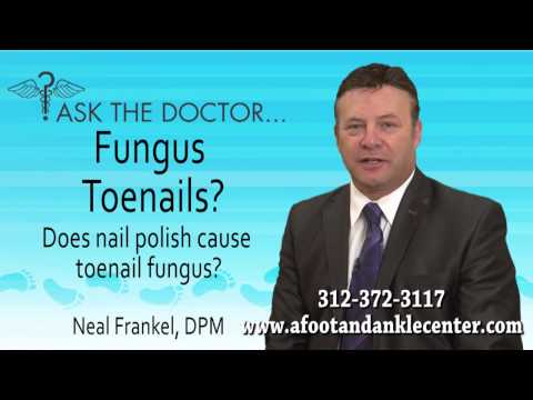 Does Nail Polish Cause Toenail Fungus? Chicago, Lincolnwood, Oak Brook, IL – Podiatrist Neal Frankel