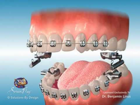 Orthodontic Marketing Amp Patient Education Advansync