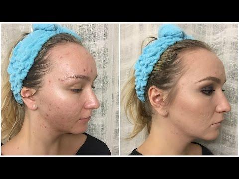 Макияж для проблемной кожи - Estee Lauder Double Wear / Makeup for Acne