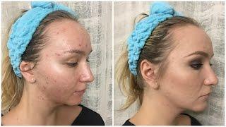 Макияж для проблемной кожи - Estee Lauder Double Wear / Makeup for Acne(Как замаскировать акне и всё остальное, что с ним связано ▽▽▽ Макияж для АКНЕ / BB-крем от Skin 79 - https://www.youtube.com/..., 2014-11-04T16:58:24.000Z)