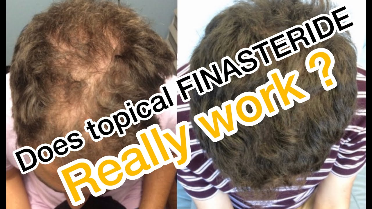 Man Uses Topical Finasteride And Minoxiidil To Regrow Hair Youtube