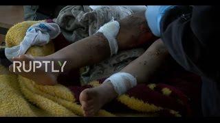 Iraq: Severely injured 4-yo girl sole survivor of Mosul airstrike