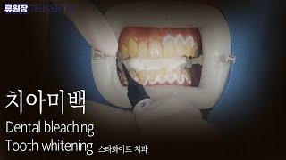 치과에서 하는 치아 미…