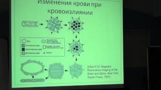 Сопоставление возможностей магнитно-резонансной и компьютерной томографии(, 2013-12-26T19:18:34.000Z)