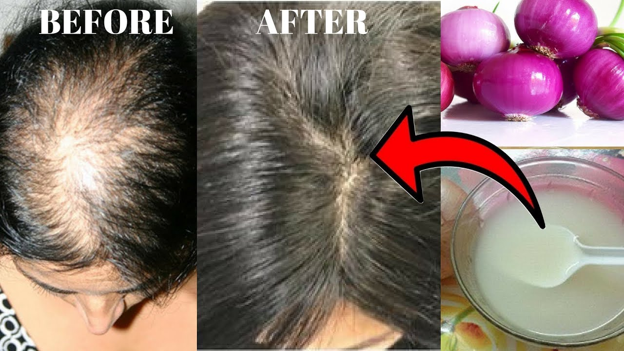 how to stop hair loss using onion