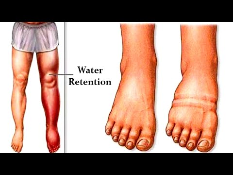 Try This If You Want To Get Rid Of Water Retention!