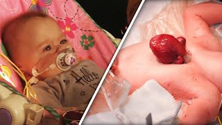 Baby Born With Heart Outside Of Chest Allowed To Go Home