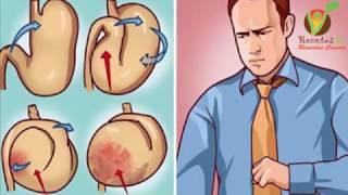 ¿Sientes el estomago inflamado y con gases después de comer? He aquí lo que debes saber !!