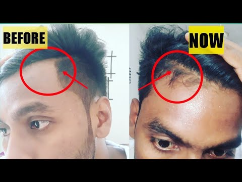 Cure hairline receding natural for Do Natural