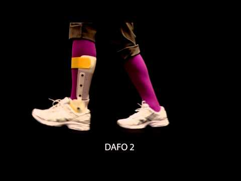 Brace movement | DAFO 2