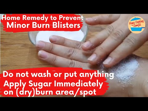 Home Remedy To Prevent Minor Burn