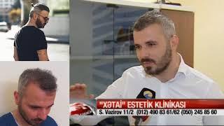 Bayramlı Samir Saç ekimi müsahibə