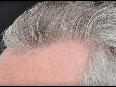 20 Years Hair Transplant Journey - Dr. Cole's Patient