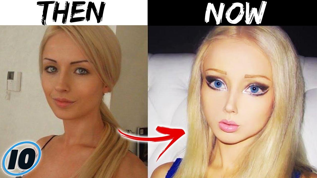 Луѓе кои претерале со пластичните операции и изгледаат како кукли