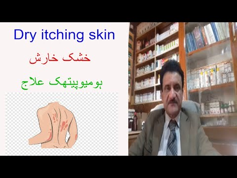 Itch scabies homoeopathic treatment by Dr Asad Naqvi