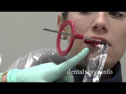 Premolar bitewing positioning tips for dental x-rays
