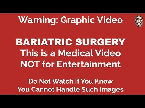 Bariatric Surgery Vblog 7 - THE BYPASS SURGERY (WARNING GRAPHIC)
