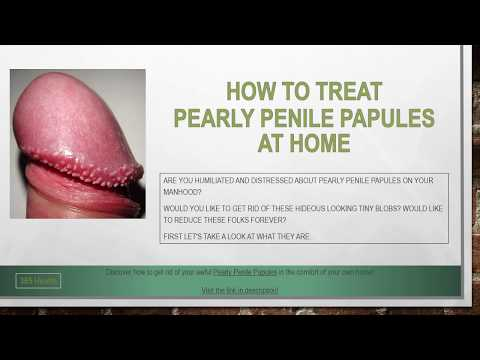 how to treat pearly penile papules at home - youtube, Skeleton
