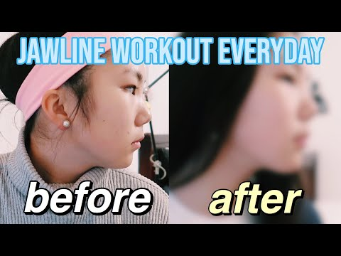 I Did a 10-minute Jawline Workout EVERYDAY for 30 Days *SHOCKING*
