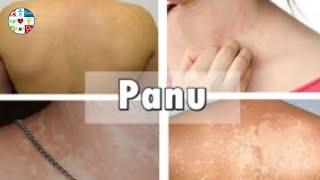 Cara Menghilangkan Panu Di Kulit - Panu adalah penyakit kulit tidak menular yang disebabkan pertumbu.