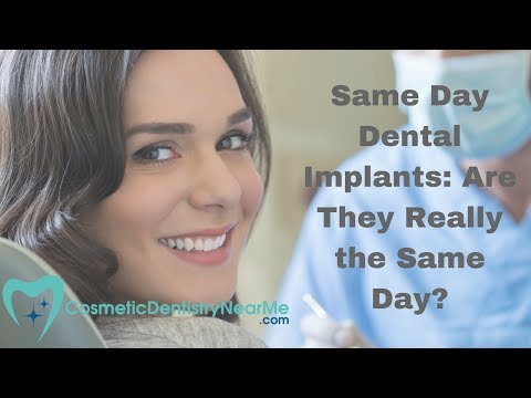 Same Day Dental Implants: Are They Really Same Day?