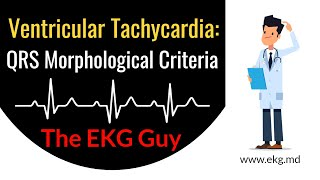 Rate and Rhythm | Ventricular Tachycardia.