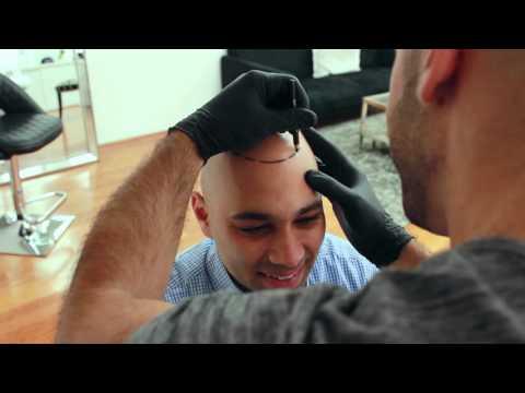 Inside Look: Scalp Micropigmentation Treatment - Scalp Micro USA