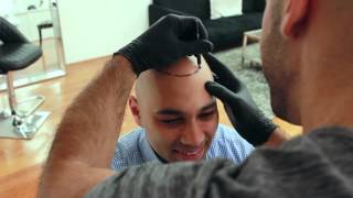 Inside Look: Scalp Micropigmentation Treatment - Scalp Micro USA