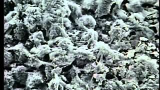 「cholera」ヨネ・プロダクション製作