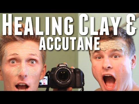 Indian Healing Clay Experiment - Week 48 on Accutane